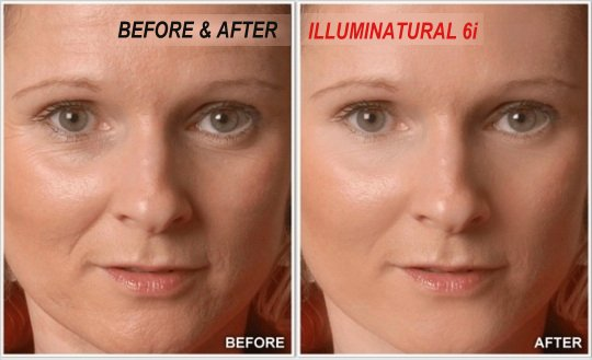 Illuminatural 6i Before and After Results
