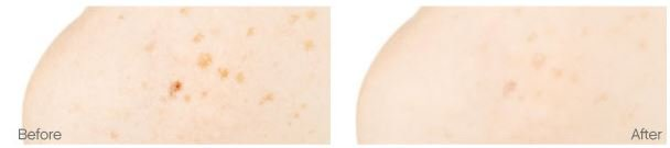 Before and After Using Illuminatural on Dark Spots