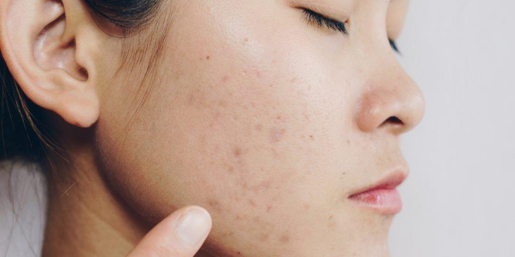 Dark Spots Caused by Hyperpigmentation