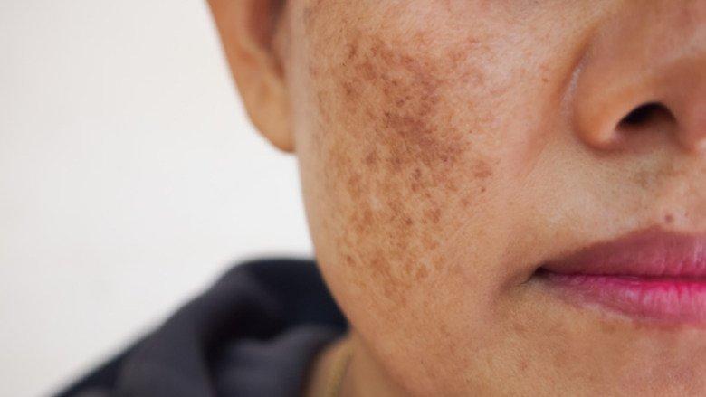 Hyperpigmentation of the Skin